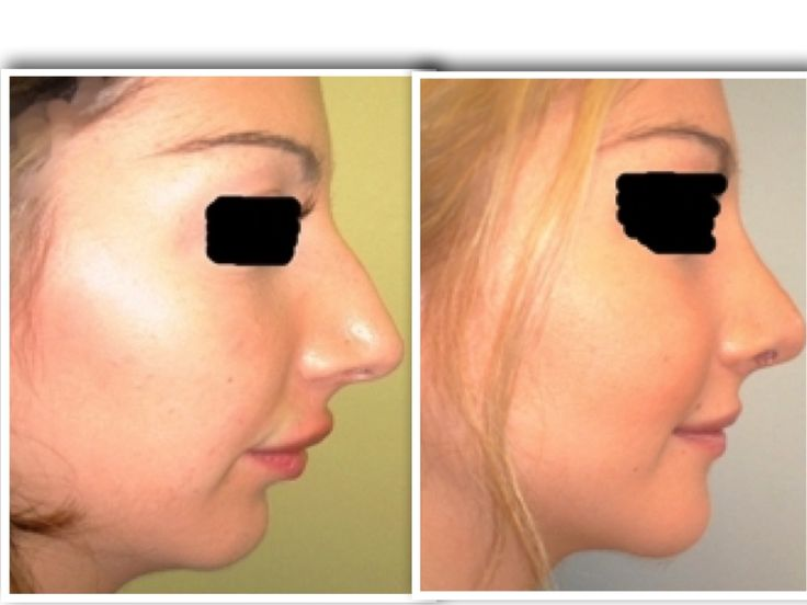 is a plastic surgery procedure for correcting and reconstructing the form, resto…