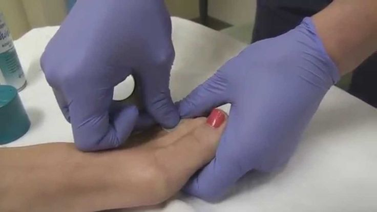 Broken Toe Emergency