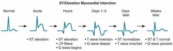ST elevation progression