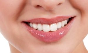 Groupon - Checkup, Zoom! Whitening, or Both at Alegria Dental Center (Up to 91% Off) in Mid-Wilshire. Groupon deal price: $89