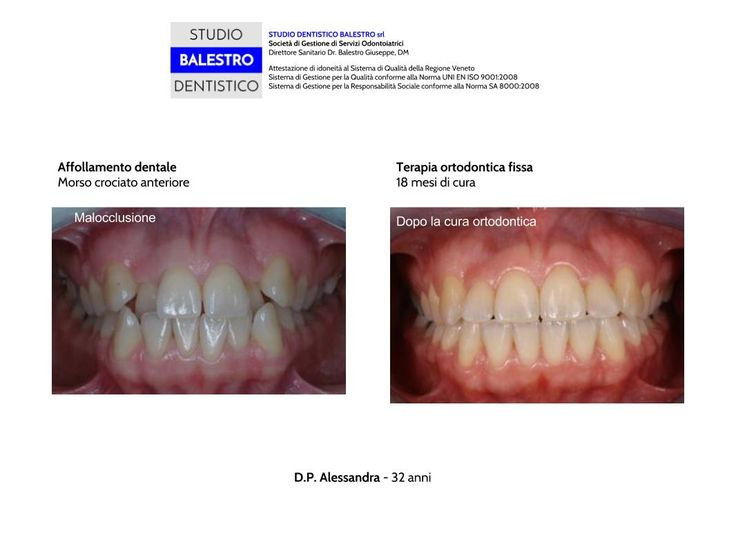 Casi clinici ortodontici Affollamento dentale - Morso crociato anteriore http://www.studiodentisticobalestro.com/2014/09/morso-crociato-anteriore_30.html