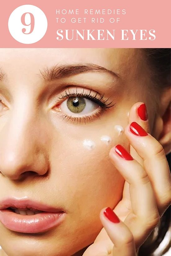 9 Foolproof Home Remedies For Sunken Eyes With Easily ...