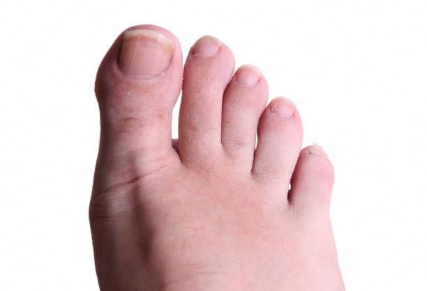 How To Get Rid Of Nail Fungus On Your Toes-Fungus Under Fingernails ...