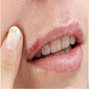 How to Heal Cold Sore on Lips #stepbystep