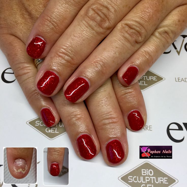 #seductivelights #red #biosculpturegel #nailrepair #anythingspossible with #biosculpture #nails #paphosnails #biosculpturebytheresa #kissonerga