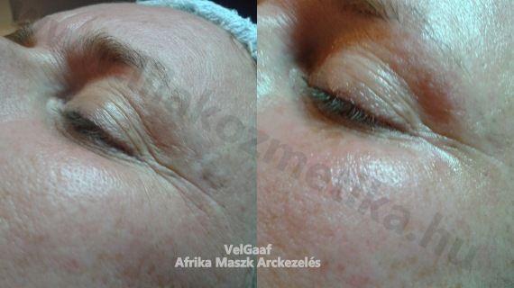 Afrika Maszk Arckezelés  Halványítja a ráncokat, gyulladáscsökkentő hatású, megszünteti a pattanásokat. Szatén simaságúvá varázsolja a bőrt és feszessé teszi a szemek körüli érzékeny területet is.