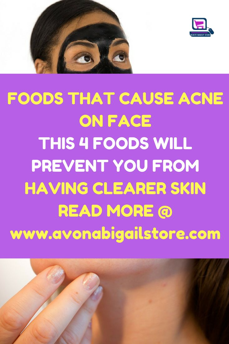Foods That Cause Acne On Face Stop Eating This Four Foods. Caffeine is a stimulant. As a stimulant, it disrupts ones sleeping pattern. Once it is disrupted, #foodsthatcauseacneonface #foodsthatcauseacne #foodsthatcauseacneskin #foodsthatcauseacnefaces