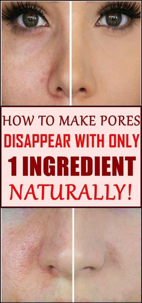 How to Make Pores Disappear with Only 1 Ingredient – Naturally!