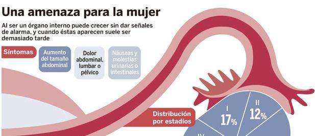 Esquema sobre síntomas del cáncer de ovario y declaraciones de la presidenta y vicepresidenta de ASACO en La Razón.  // cancer ovario