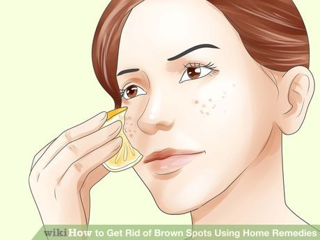 Image titled Get Rid of Brown Spots Using Home Remedies Step 1