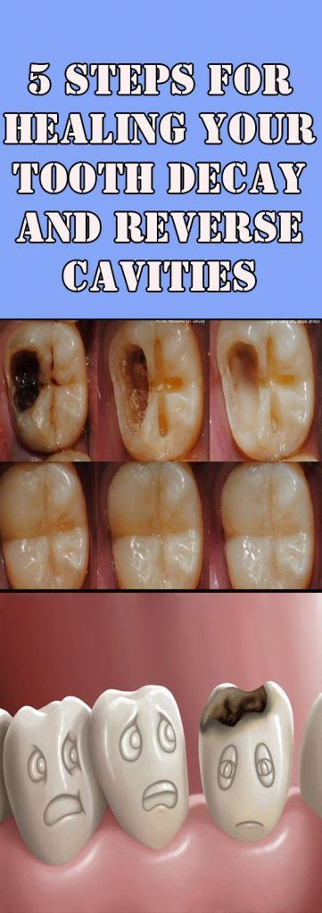 5 TIPS ON HOW TO REVERSE CAVITIES AND HEAL TOOTH DECAY NATURALLY!