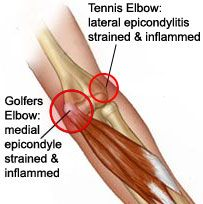Golfers Elbow/Tennis Elbow-Pinned by SOS Inc. Resources http://pinterest.com/sostherapy.