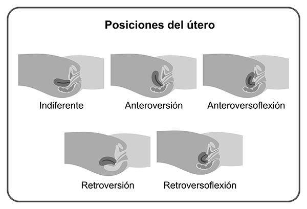 Resultado de imagen para utero AnteroVersoFlexión