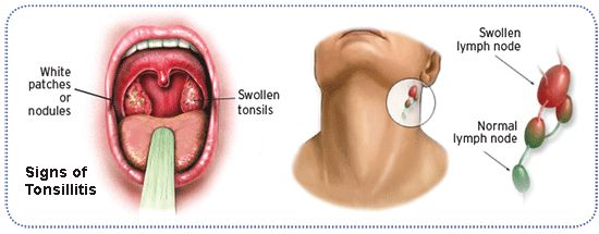 The tonsils are part of the immune system and protect against germs by producing antibodies. These antibodies play an important role in the body's immune system by attacking bacteria and viruses....
