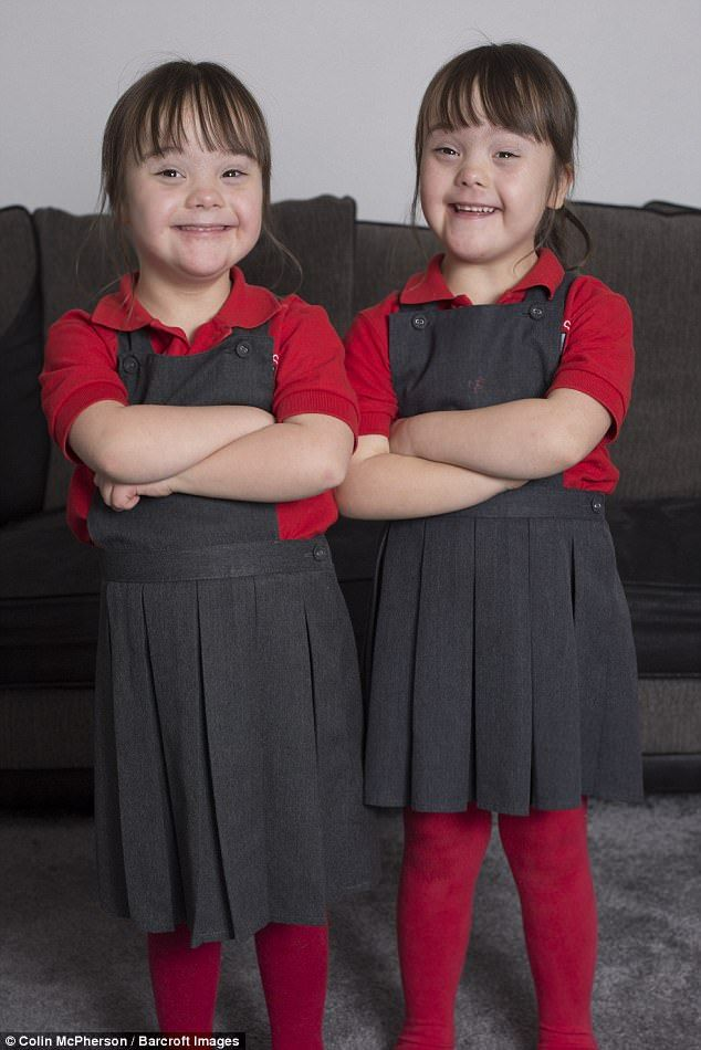 Одна пара на миллион: идентичные близнецы с синдромом Дауна