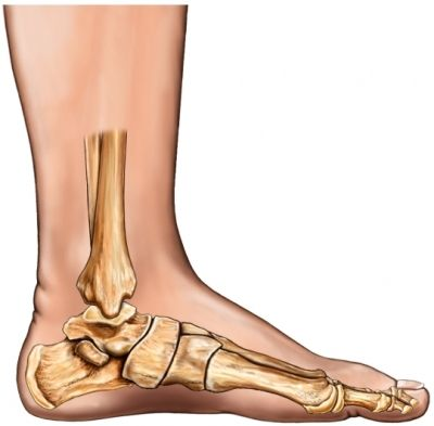 Deal with Flat Feet - Workout for Fallen Arches - http://dailyvitamoves.com/fix-flat-feet-exercise-fallen-arches/