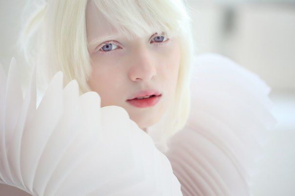 画像 : ロシアの美しすぎるアルビノ少女『ナスチャ』と先天性白皮症 - NAVER まとめ