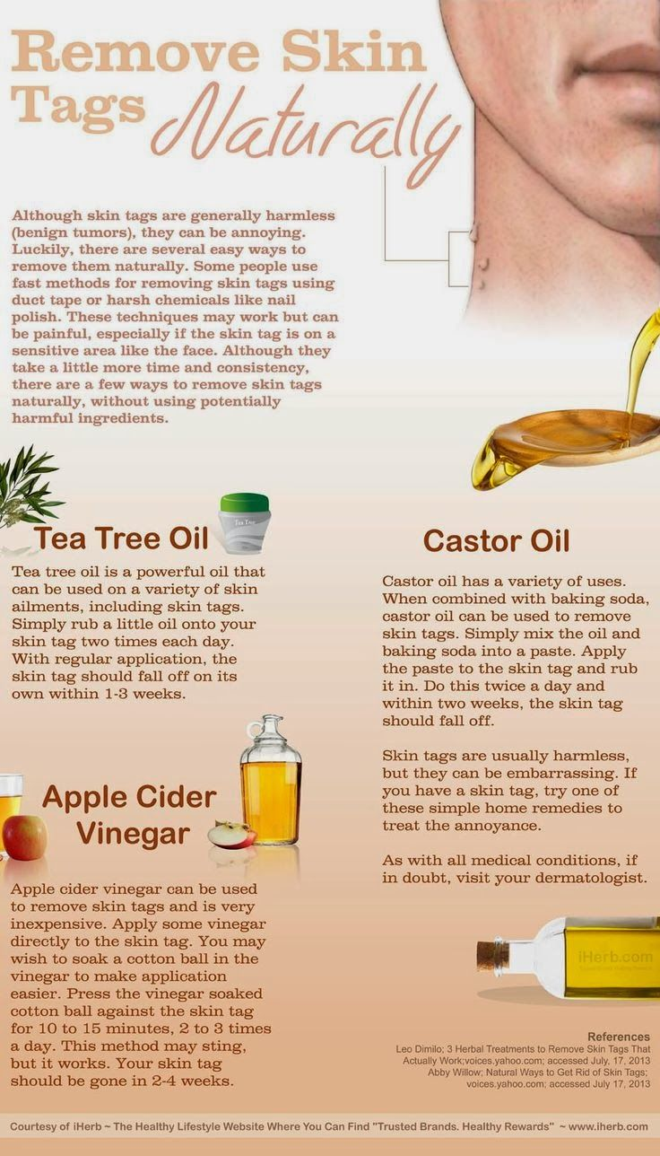 How to Remove Skin Tags Naturally [Infographic] using tea tree oil, castor oil or apple cider vinegar