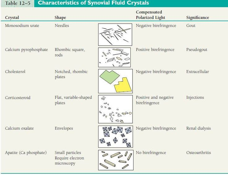 Medical Laboratory and Biomedical Science: Quality Improvement in the Identification of Crystals from Synovial Fluid