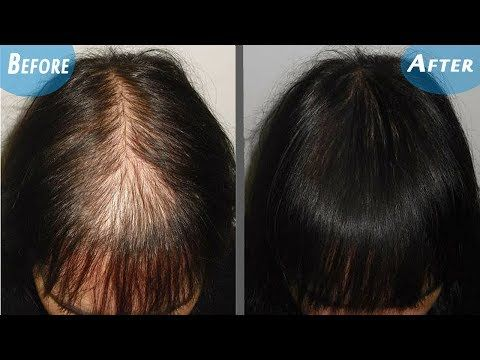 Magical Hair Re-Growth Serum,100% Effective for He & She   One Odd Trick To Regrow Your Hair In Days - YouTube