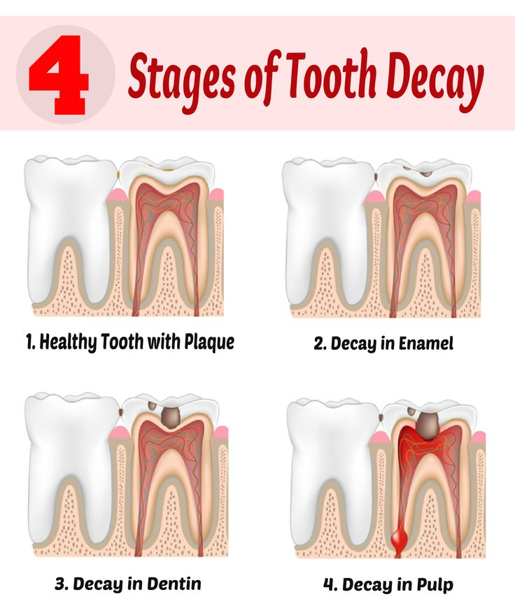 how to get rid of black tooth decay