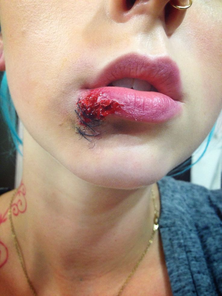 Busted Lip with Stitches Special Effects Makeup Makeup ...