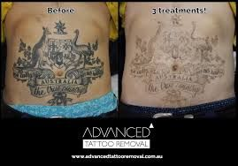Advanced Tattoo Removal specializes in laser tattoo removal in Brisbane at very low cost. We offer affordable, reliable Tattoo Removal services in Brisbane and the surrounding areas. For more info visit our website.