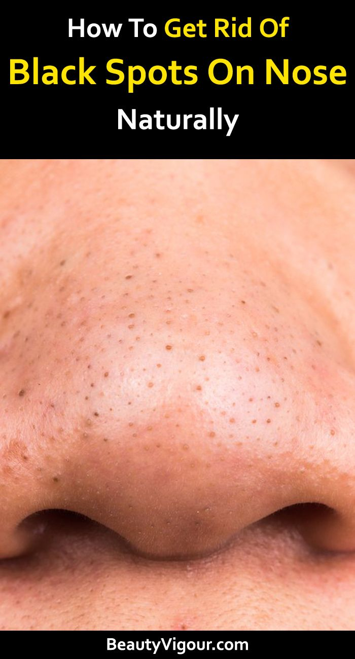 1c724c9dbeec1c09c353a7208db8cfb9 - How To Get Rid Of Black Dots On Your Nose