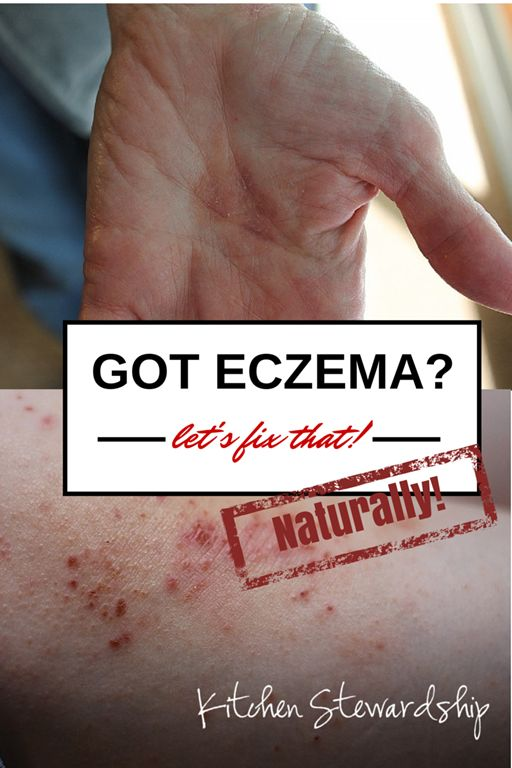 Dry skin, itchy red spots... #eczema is such a nasty beast these days! Here's a #natural remedy that really works to soothe as you search for the underlying cause, plus TONS more ideas from readers! :: via Kitchen Stewardship