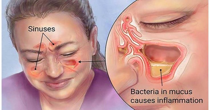 Kill Sinus Infection in 20 Seconds with This Simple Method and This Common Household Ingredient