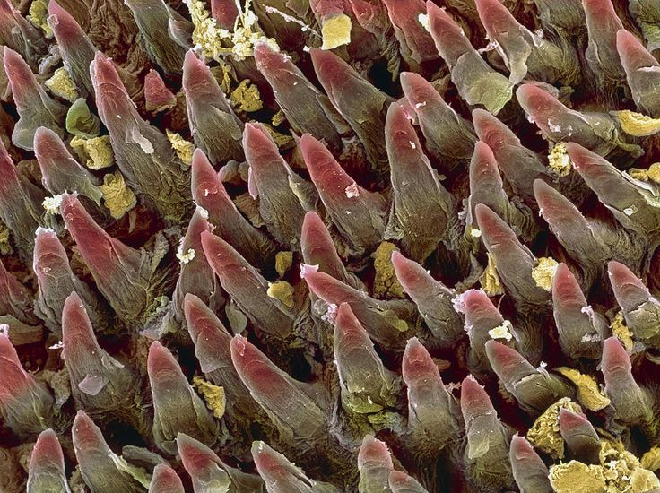 Tongue papillae. SEM of filiform papillae (cone- shaped) on the surface of the tongue. Filiform papillae are covered by stratified squamous epithelial cells (not seen). Dead cells of the uppermost layer are constantly being shed and replaced (desquamation). This gives the papillae their scaly appearance. Filiform papillae contain nerve endings that transmit tactile (touch) information to the brain. The tongue's taste buds (not seen) are less numerous than these papillae.