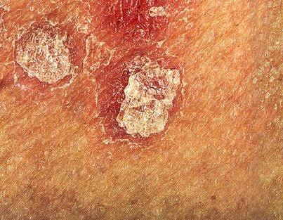 Signo de Auspitz: En caso de psoriasis, la retira de la escama blanquecina deja al descubierto una superficie eritematosa con sangrado activo.