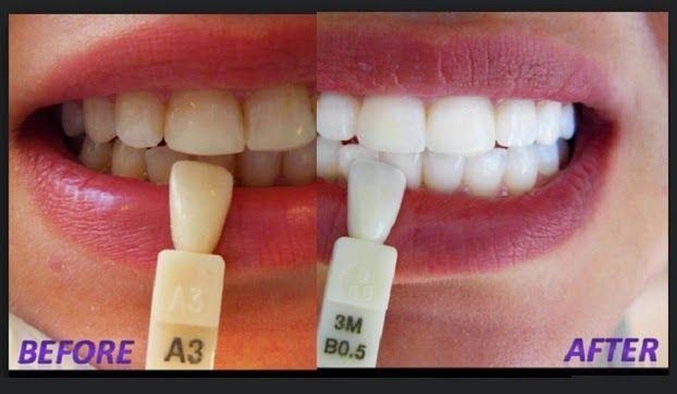 Pin On Hydrogen Peroxide Teeth Whitening