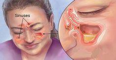 Mata la infección de la sinus en 20 segundos con este método simple y común de la casa! – Salud con Remedios