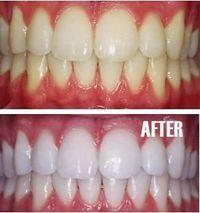 Blanqueamiento -Poner un poco de pasta de dientes en una taza pequeña, mezcle en…  #Nutrición y #Salud YG > nutricionysaludyg.com
