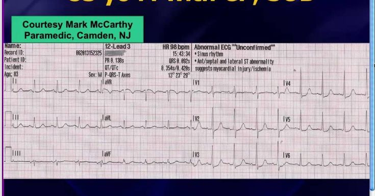 Posterior STEMI or anterior ischemia? ___________________________________ Dr. Amal Mattu, an Emergency Physician with University of MD, brings you free weekl...