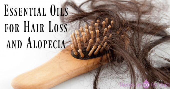 Learn about the best essential oils for hair loss/alopecia and how to make a hair regrowth serum that strengthens, stimulates, and repairs hair follicles. http://ultrahairssolutions.com/