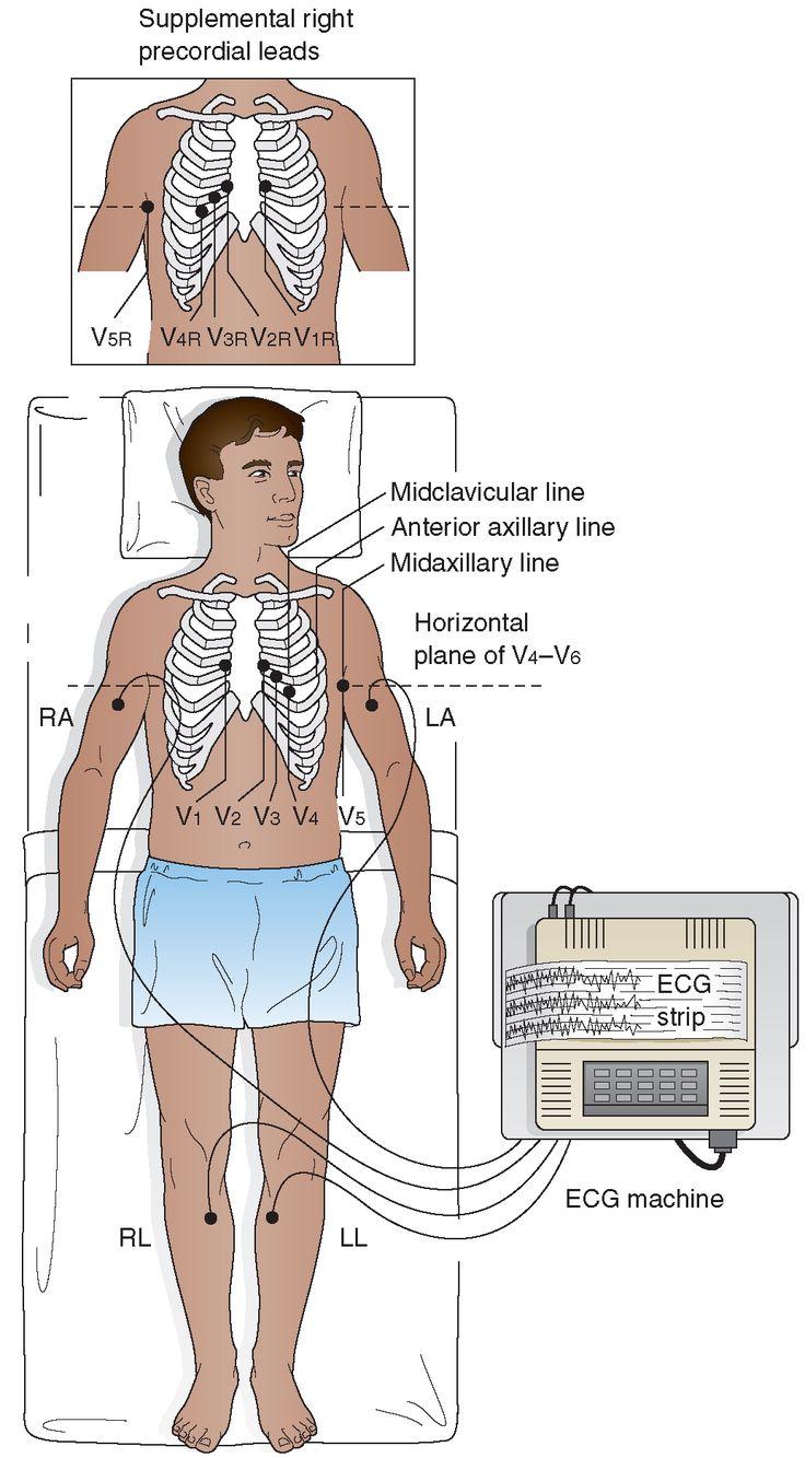 Twelve Lead Electrocardiogram Ecg Electrode Placemen