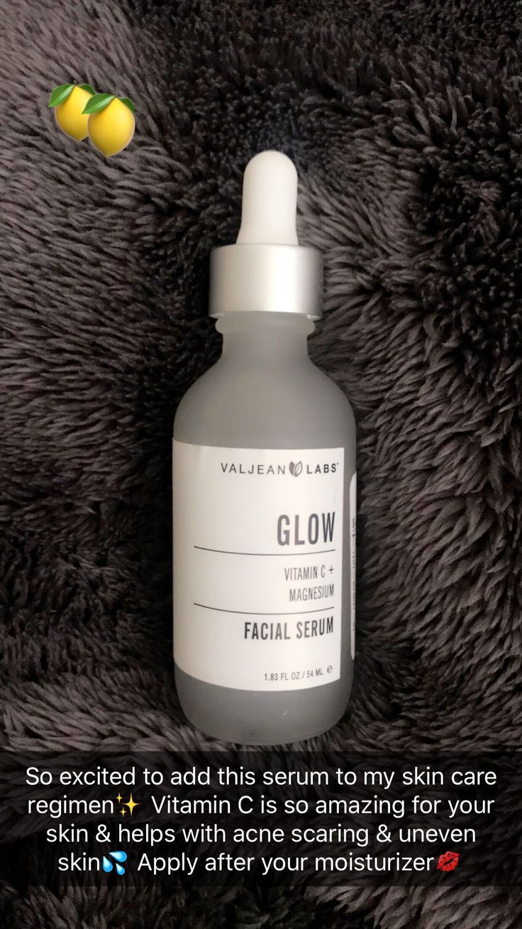 That no makeup glow coming soon✨✨ http://beautifulclearskin.net/category/clear-skin-tips/