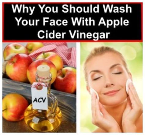 What Happens to Your Face After Washing It with Apple Cider Vinegar: What You Discover May Surprise You