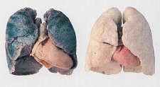 De longen hebben een systeem om zichzelf te reinigen. Daar wordt voor gezorgd door de witte bloedcellen. Die zorgen ervoor dat bacteri�n kunnen worden verwijderd uit de longen, alsook de giftige chemische stoffen in sigarettenrook. Echter verschilt dat van persoon tot persoon. En zeker bij hardnekkige rokers zal dat reinigen niet ten volle kunnen gebeuren.