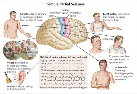Temporal Lobe Seizure-Symptoms, Diagnosis & Treatment... What the devil OMG MOM read this!