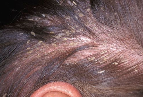 How To Treat Seborrheic Dermatitis On Face Naturally
