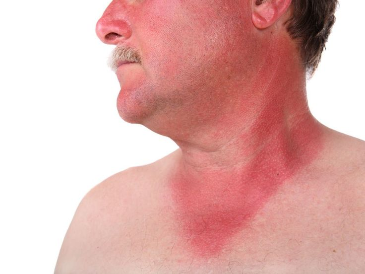 Home remedies for sunburn include application of aloe vera, oatmeal water, potato, lemon juice, sandalwood, lettuce, turmeric, vinegar, almond, rose water and milk. Cold water compressors, cool bath, application of sunscreen, optimum consumption of water on a daily basis, use of antibacterial soap, moisturizers are some other home remedies that help in quick healing.Due to the extreme weather conditions and depletion of ozone layer, the effects of sunburn is intensified. With the effective…