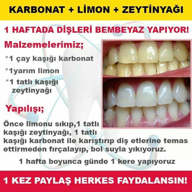 Diş beyazlat