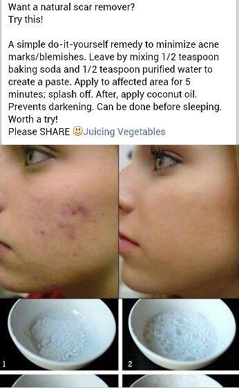 54 best skin deep images on pinterest diy beauty beauty secrets 16 wonderful benefits of aloe vera juice ghritkumari saar get rid of acneget ccuart Gallery