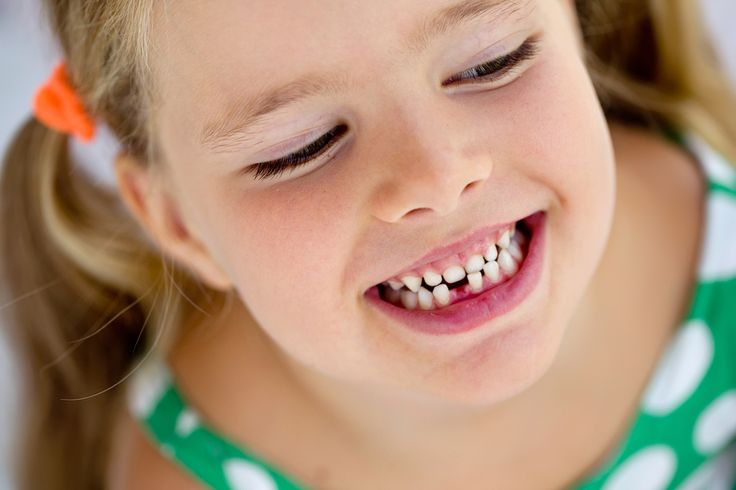 Os dentes de leite, apesar de não serem permanentes, podem apresentar complicações. No caso da cárie, por exemplo, muitos pais pensam que não é preciso fazer tratamento já que o dente vai cair, mas isso é um erro. Quando a cárie não é tratada, a bactéria pode entrar pelo canal do dente e promover uma infecção no dente permanente, que está logo abaixo. Com isso, o permanente pode nascer já com alguma imperfeição,como má formação,falta de uma ponta ou manchas. #lisboa #Portugal #dentista…