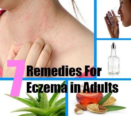 eczema in adults