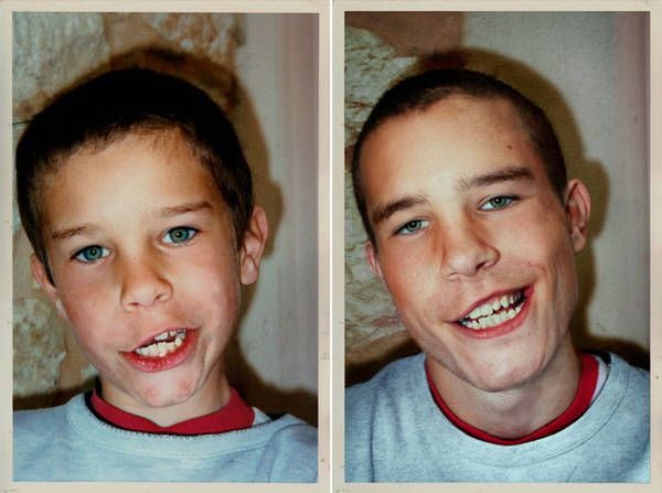 Still pulls the same face  Check Out These Hilariously Recreated Childhood Photos • Page 3 of 6 • BoredBug
