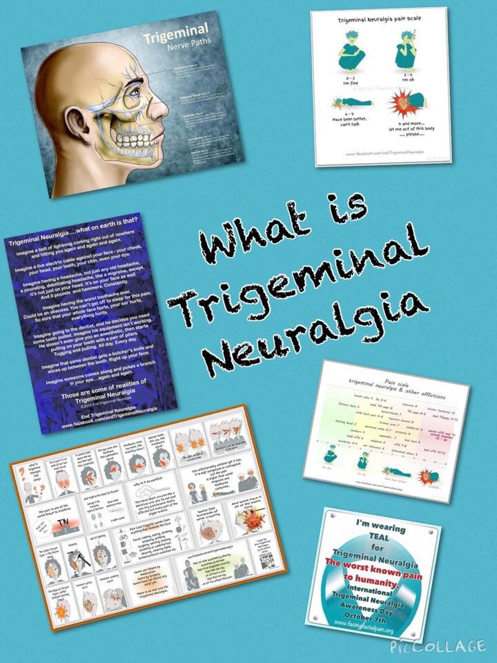 What is Trigeminal Neuralgia
